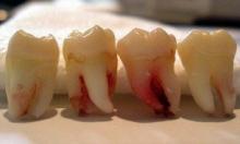 رشد دندان عقل به وضعیت فک هر شخص بستگی دارد و در صورت رشد طبیعی نیازی به کشیدن نیست.