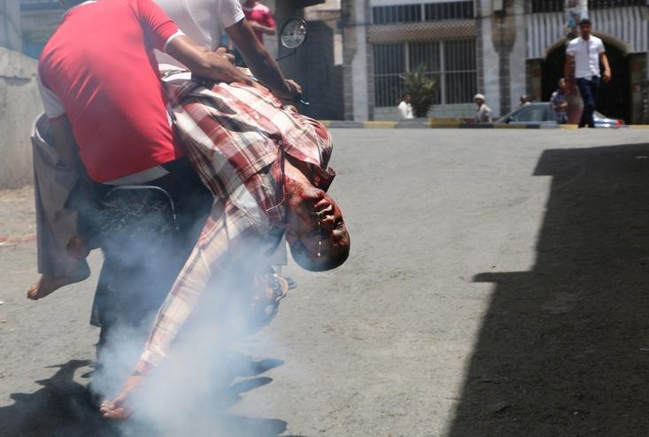 انتقال یکی از مجروحین یمنی که در درگیری نیروهای منصورهادی  و انصارالله مورد اصابت گلوله قرار گرفته است.