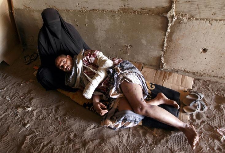 این مرد یمنی پس از آن که در بمباران ائتلاف سعودی زخمی شد، در پناهگاه های زیر زمینی پناه گرفته است.