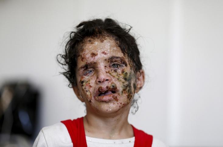 یک دختر یمنی که در اثر حمله هوایی سعودی به صعدا به شدت مجروح شده است
